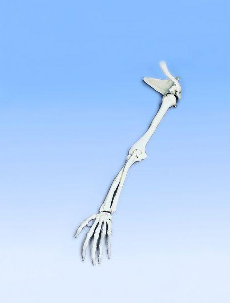 Armskelett